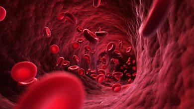 تصویر از منابع و جزوات جدید رشته تکنولوژی گردش خون ( پرفیوژن)