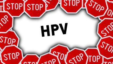 تصویر از ویروس HPV چیست؟ علایم و راه های درمان HPV